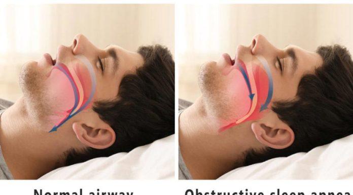 Обструктивний апное сну